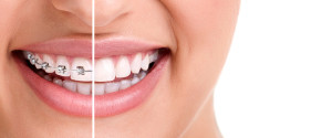 Braces finance available at Incred.